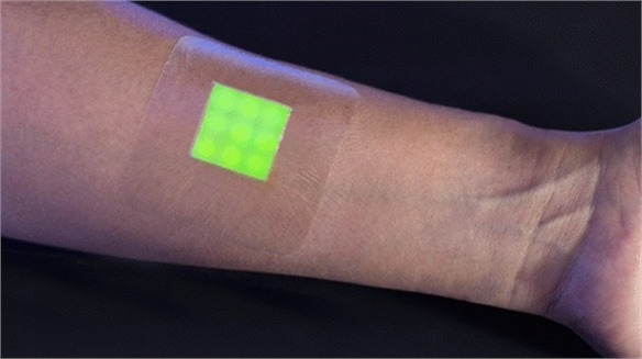 Smart Bandage Predicts Infection