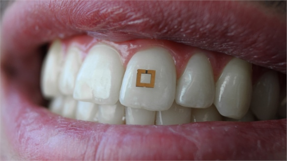 Tooth-Mounted Diet Tracker