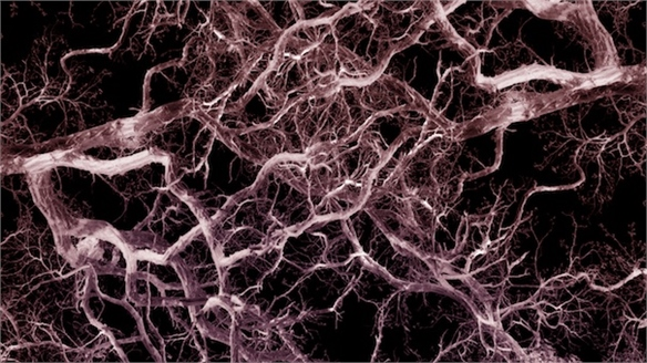 Artificial Blood Vessels