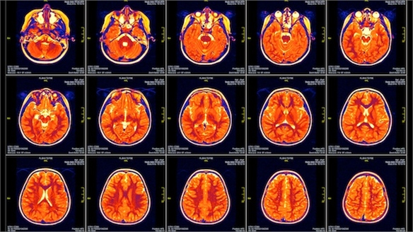 MRI Scans Create 'Perfect' Designs
