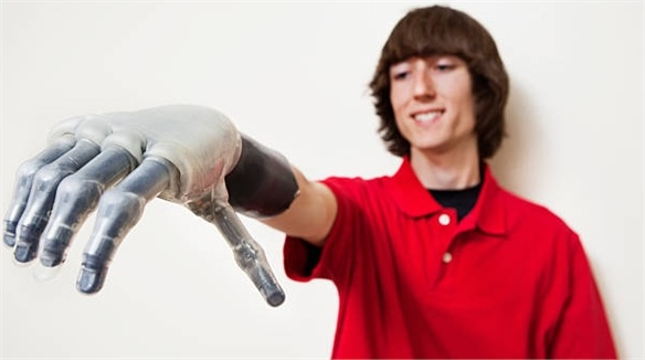 E-Skin Brings Sense of Touch to Prosthetic Hands